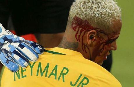 Μάτωσε ο Νεϊμάρ στη νίκη της Βραζιλίας