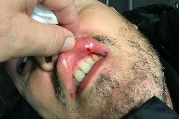 Οι φωτογραφίες του Ολυμπιακού με τον τραυματία Γκαρθία