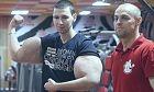 Ο Ρώσος 'Ποπάι' του bodybuilding κινδυνεύει με ακρωτηριασμό