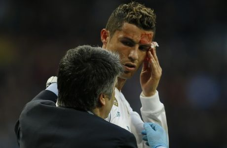 Real Madrid's Cristiano Ronaldo bleeds from his forehead during a Spanish La Liga soccer match between Real Madrid and Deportivo Coruna at the Santiago Bernabeu stadium in Madrid, Sunday, Jan. 21, 2018. (AP Photo/Francisco Seco)