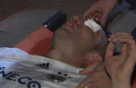 Τρομακτικός τραυματισμός του Φαν Πέρσι στο μάτι