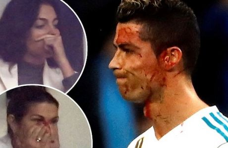 epa06461582 Real Madrid's Portuguese striker Cristiano Ronaldo suffers a wound in his face during a Spanish league La Liga soccer match between Real Madrid and Deportivo at Santiago Bernabeu stadium in Madrid, Spain, 21 January 2018.  EPA/Juan Carlos Hidalgo