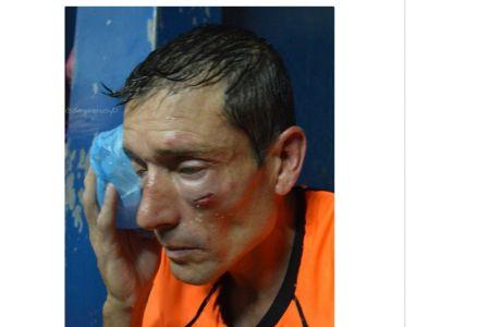 Διαιτητής έφαγε το ξύλο της αρκούδας στην Αργεντινή