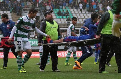 Φρικτός τραυματισμός στην Χιλή: Του έσπασε το πόδι!