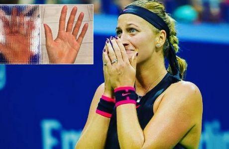 Σοκάρει το χέρι της Κβίτοβα εννέα μήνες μετά!