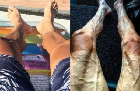 2a824991f94 Σοκάρουν τα πόδια ποδηλάτη πριν και μετά το γύρο της Γαλλίας | Contra.gr